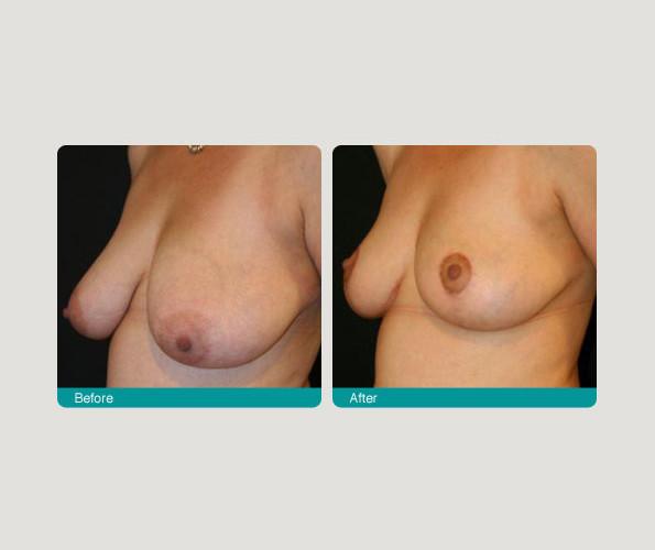 breast_red_lipo